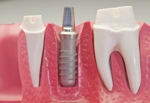 Имплантация зубов в Камышине